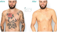 Skin Camouflage? Expertise. Knowledge. Experience… Discover here in this blog […]