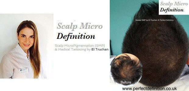 FACEBOOK | TWITTER | INSTAGRAM | LINKEDIN | PINTEREST www.scalpmicrodefinition.co.uk […]